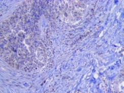 Human Ovarian carcinoma IHC