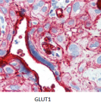 microscopic picture of GLUT1 stained with antibody