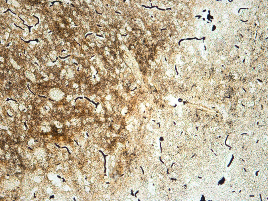 Beilschowsky Special Stain on Mouse Brain For Neurofibrils and Senile Plaques 20x