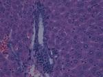 Liver metastasis 40x