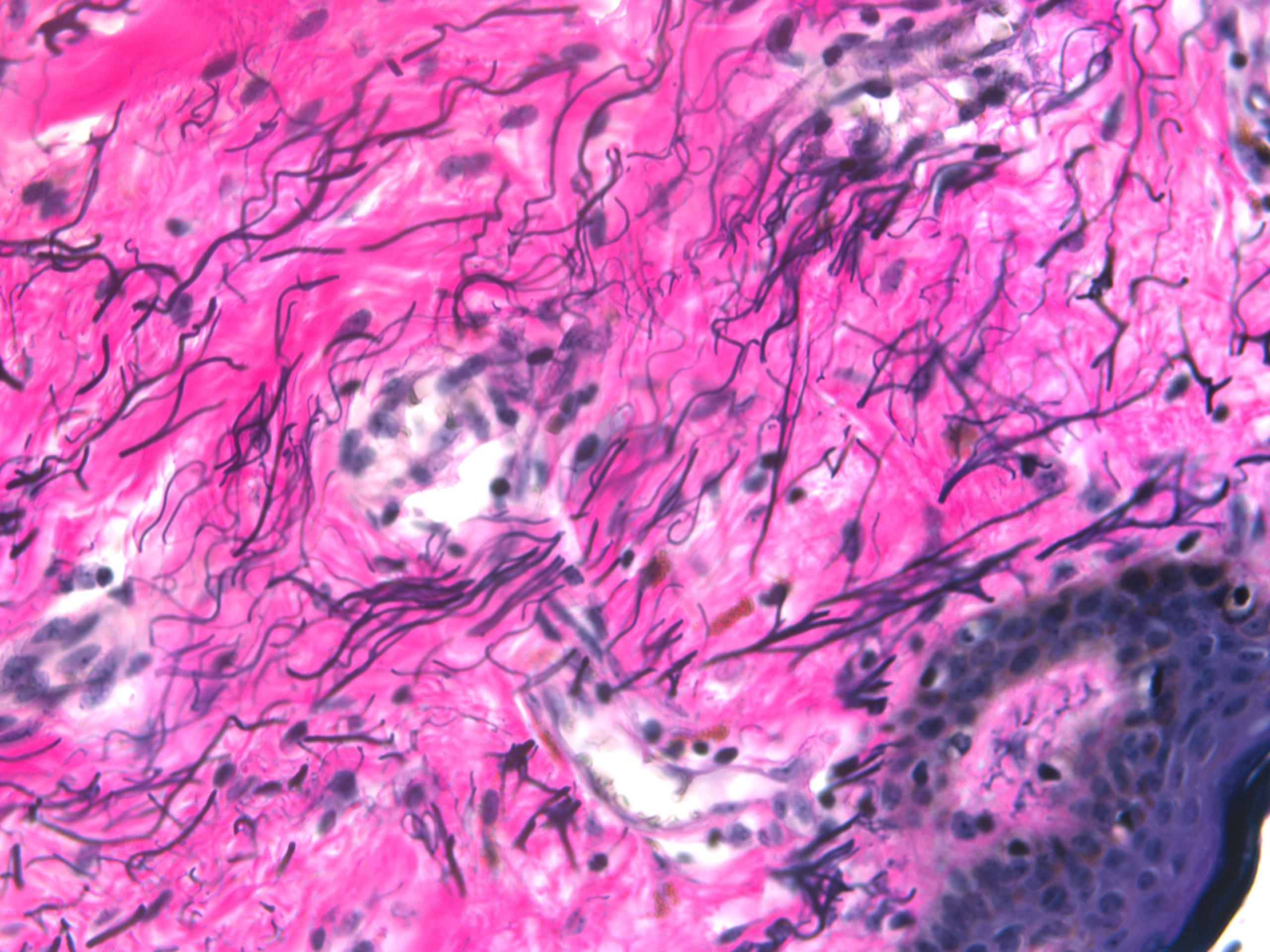 Elastic Fibers In The Human Body Histopathology Service