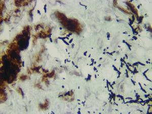 fungus -GMS