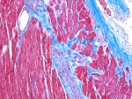 Microscopic picture of heart stained with masson's trichrome