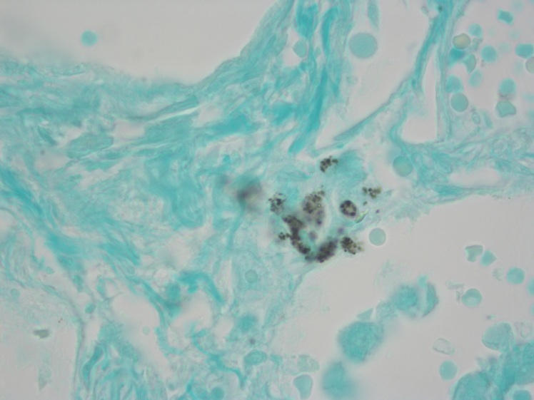 Microscopic picture of Pneumocystis Fungus - GMS