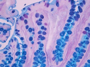 Microscopic picture of colon stained with alcian blue / PAS