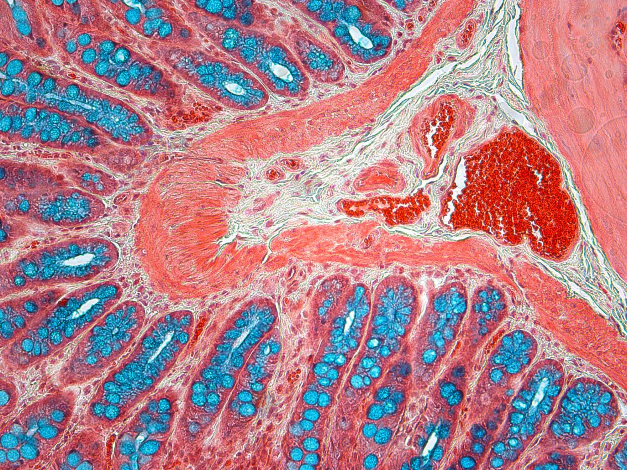 histologistics stains list  u2013 histopathology service