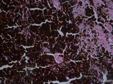 Human skin (melanoma?) H&E