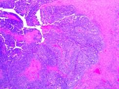 Ovarian Carcinoma H&E 4x