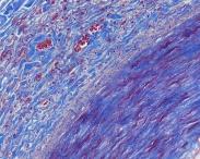 Human Artery trichrome