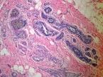 Human breast carcinoma 10x