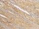 Human Brain - Bielschowsky stain for Neurofibrils