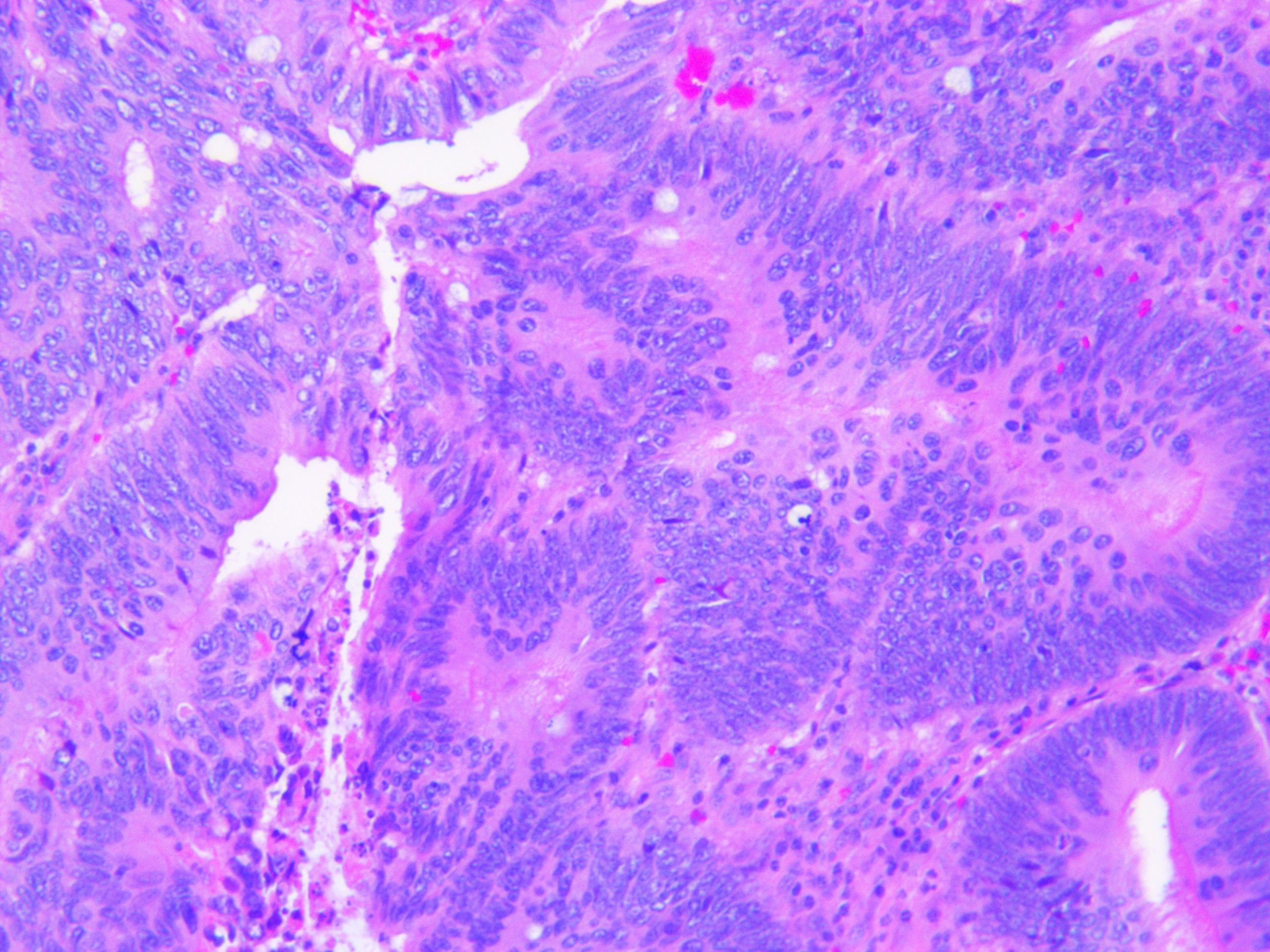 Colon Adenocarcinoma Histology Related Keywords - Colon ...