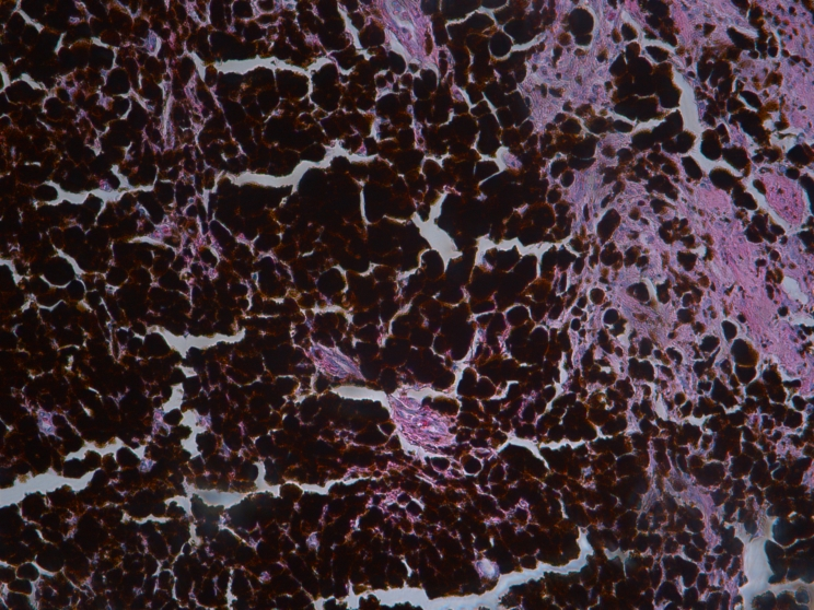 Human skin Melanoma H&E