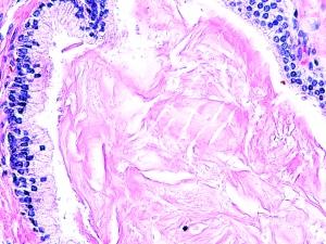Prostate H&E stain 40x