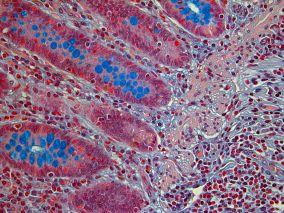 Human Appendix Alcian Blue