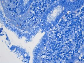 Human Stomach Fields stain for helicobacter pylori