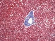 Human liver trichrome