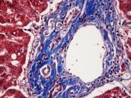 Hu liver trichrome 40x-2