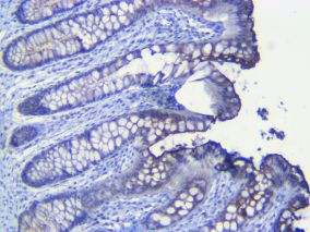 Human colon CEA