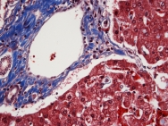 Human Liver Trichrome 40x