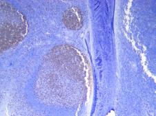 Human Tonsil Ki67 stained