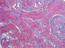 Human Uterus Gomori's one step trichrome 10x