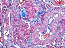 Human Uterus Gomori's one step trichrome 20x