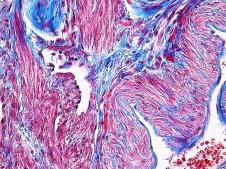 Human Uterus Gomori's one step trichrome 40x
